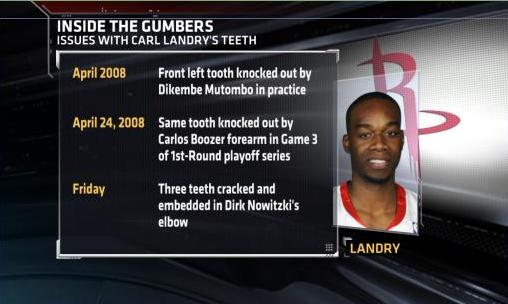 Carl Landry's Oral Health